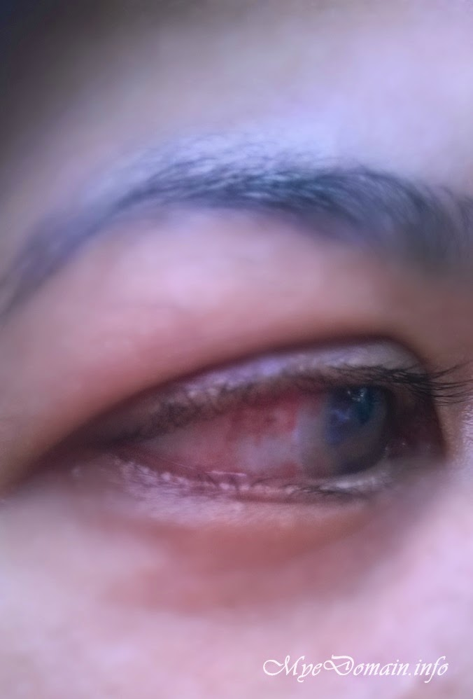 Subconjunctival Hemorrhage in my right eye