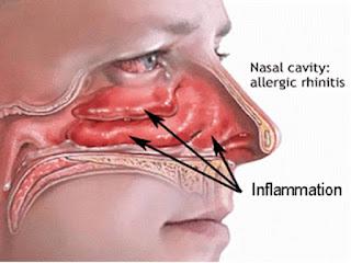 Allergic Rhinitis, ஒவ்வாமை, அலர்ஜி, Ovvamai