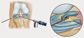 http://www.orthopedic-oncologist.com/arthroscopy.php