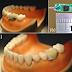 Científicos crean implantables en los dientes capaces de transmitir información