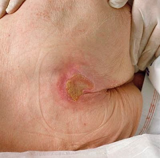 Physical Examination Pressure Ulcers in Elderly