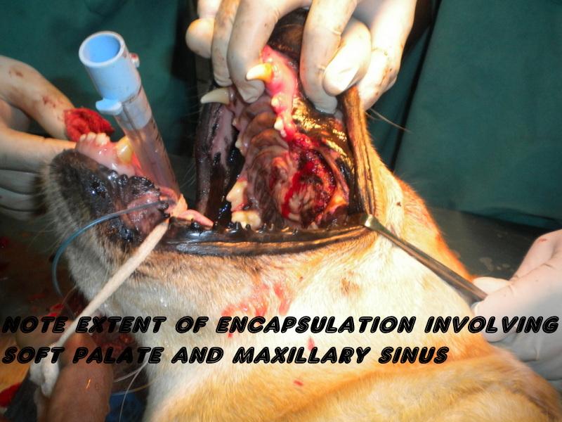 Nerve Sheath Tumor - Survival Rate, Symptoms, Treatment ...