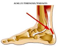 Tendinitis Achilles