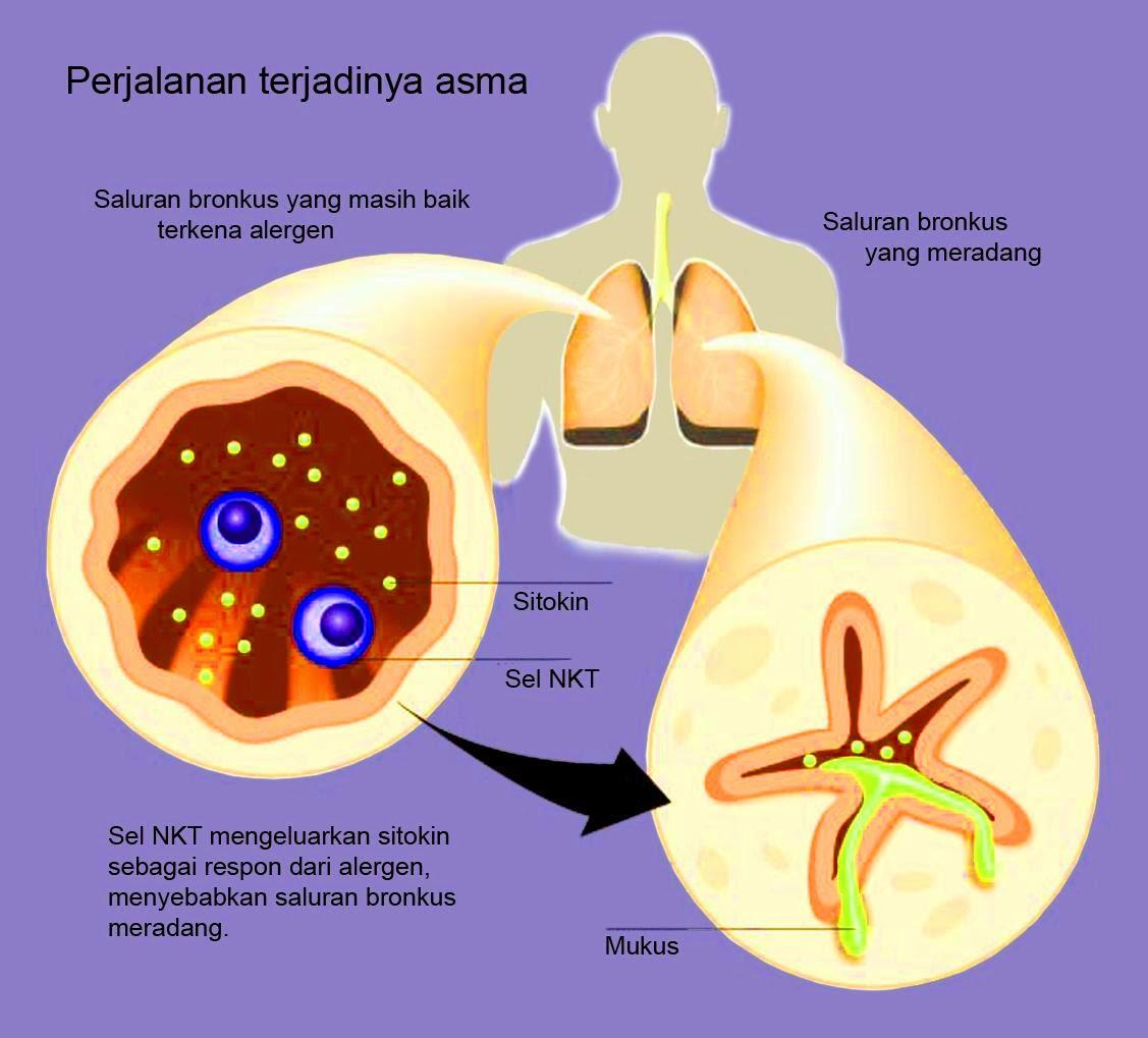 Cara Cepat Menyembuhkan Penyakit Asma Secara Alami
