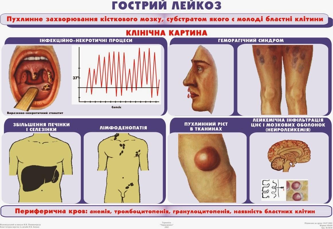 Как лечить народными средствами хронический лейкоз