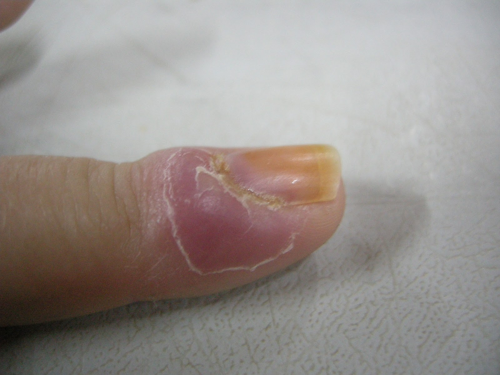 Paronychia (nail infection ) - WebMD Boots