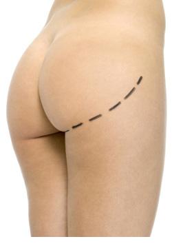 operacion implantes de gluteos