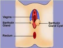 Apa itu Bartholin Cyst?