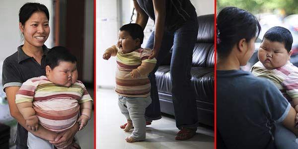 Bayi Ini Gak Bisa Jalan Gara-gara Terlalu Gendut [ www.Bacaan.ME ]