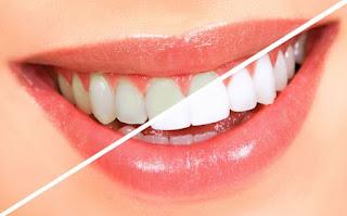 Dentanesia Memilih Cara Memutihkan Gigi Untuk Hasil Maksimal
