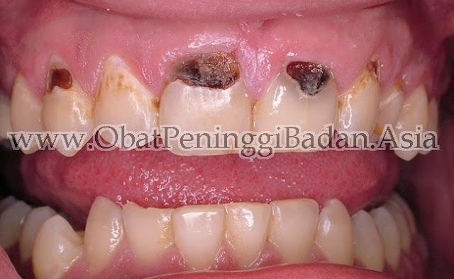 Kalsium Menyehatkan Gigi Gigi Berkarang Berlubang Akibat Kekurangan Kalsium Asupan Kalsium Calcium Susu NHCP Suplemen Kalsium Vitamin Kalsium Gusi Klinik Pengobatan Tiens Akupunktur Bandung Alami Herbal NCP TNCP