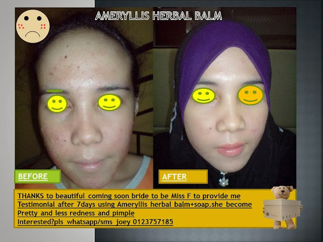 testimonial from happy coming soon bride after use in 7 days herbal balm and soap from ameryllis