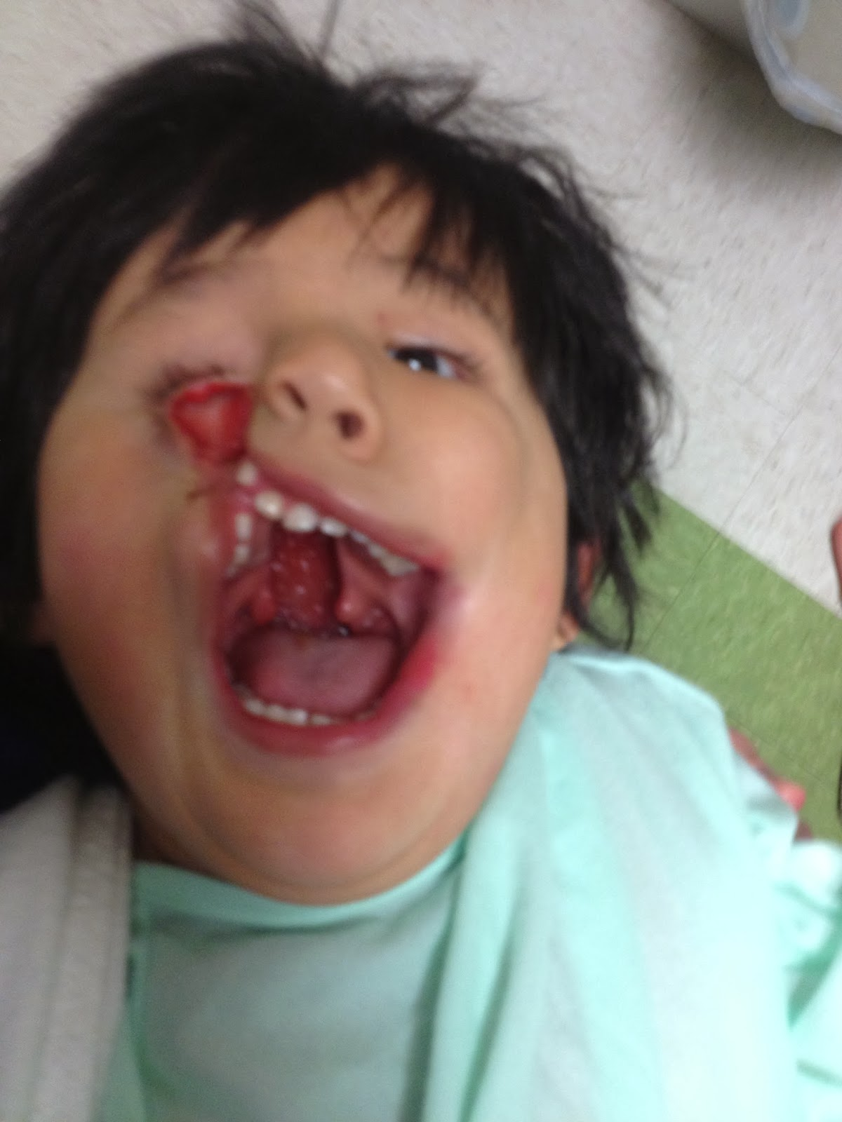 Cleft Palate Before And After Laura's first surgery was to