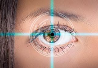Cirugía miopía láser