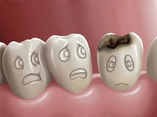 Gigi berlubang gigi, sakit gigi