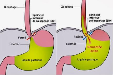 reflux gastro oesophagien traitement pdf