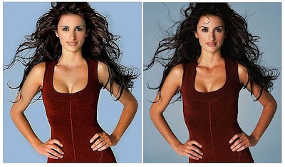 Plastic Surgery Before and After