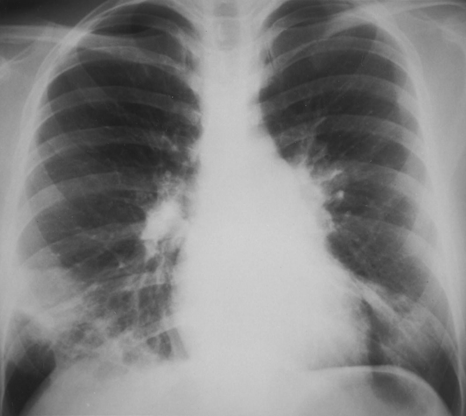 mycoplasma pneumoniae Dos, mycoplasma pneumoniae, mycoplasma hominis y myco-plasma genitalium además se reconoce como patógeno a los ureaplasmas mycoplasma fermentans.
