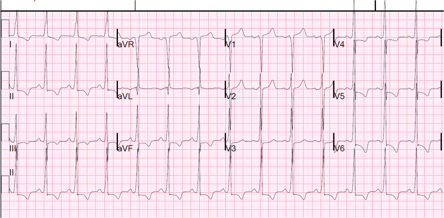 history of ecg An 84-year-old man presents with a history of hypertension, hyperlipidemia, and  bladder cancer he is undergoing outpatient chemotherapy.