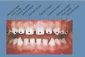 http://jasadh.blogspot.com/2014/10/cara-memutihkan-gigi-secara-tradisional.html
