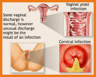 vaginal itching indonesia
