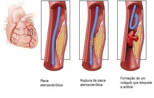 ostriy-analniy-tromboz