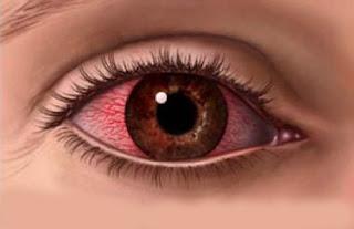 Tutorial Mengganti Warna Mata Menggunakan Photoshop