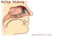 Penyakit Polip Hidung