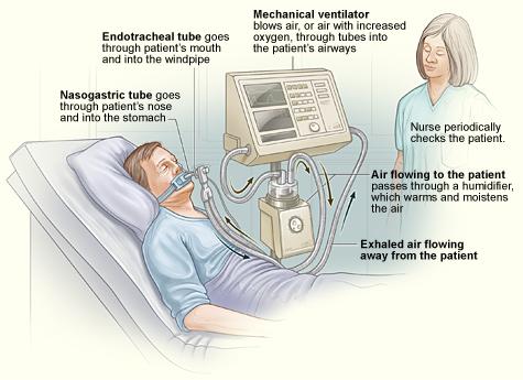 Ventilator sebagai alat bantuan pernafasan