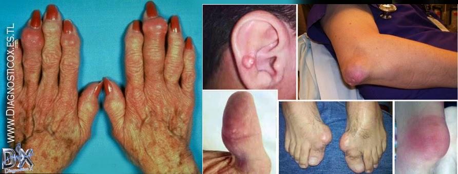 que no se puede comer con el acido urico causas y sintomas del acido urico como quitar el dolor del pie por gota
