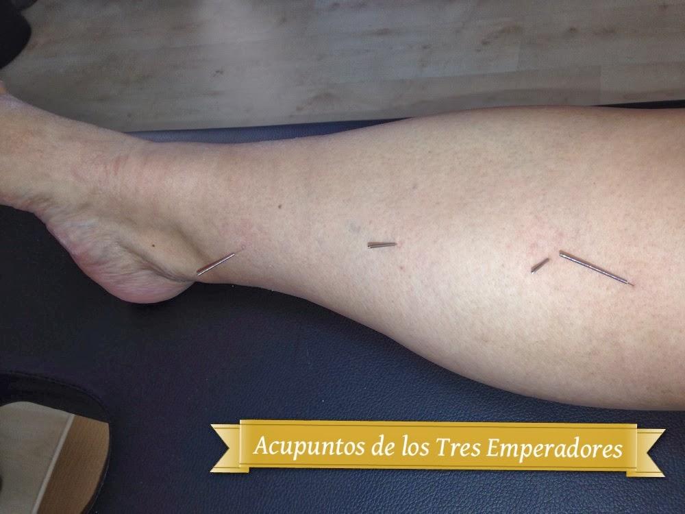 Tratamiento acupuntural de patología renal y urológica en sistema Tung