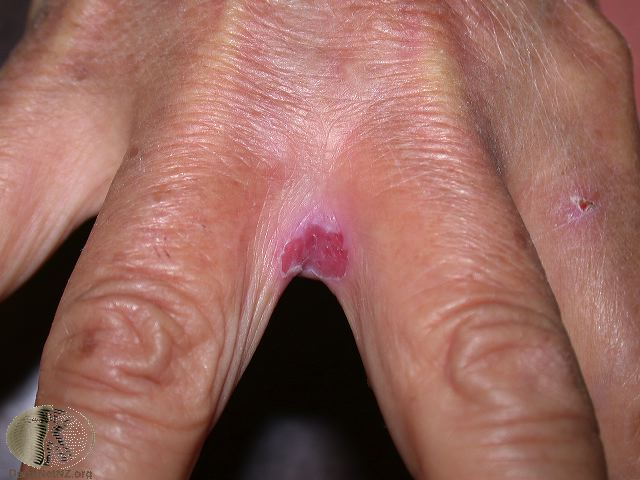 Wie gribok auf den Nägeln die Hände aussieht