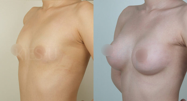 The same. good breast implants excellent idea