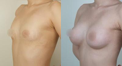 breast augmentation Korea