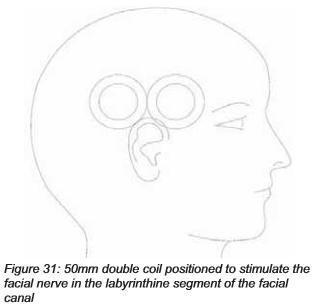 写真:顔面神経磁気パルス刺激