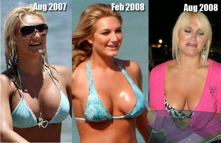 Plastic surgery and breast