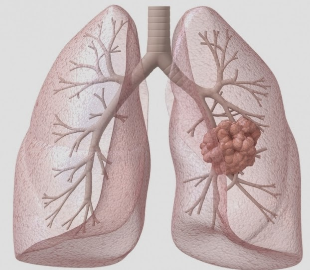 Lung Caner