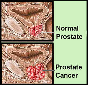 Prostate Cancer StagesSign Ribbon cells Horoscope Symbol Tattoos Research Zodiac Sign Ribbon Tattoos
