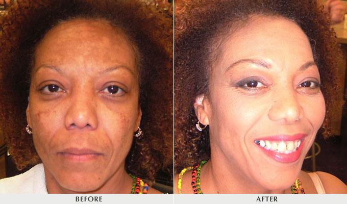 vitamin e oil for your face
