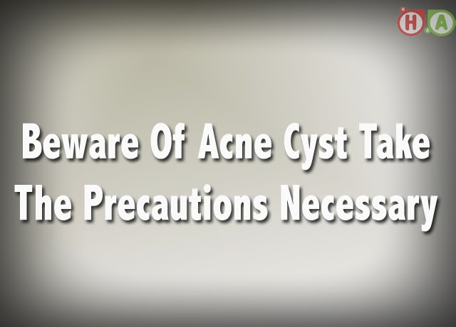 Beware Of Acne Cyst Take The Precautions Necessary