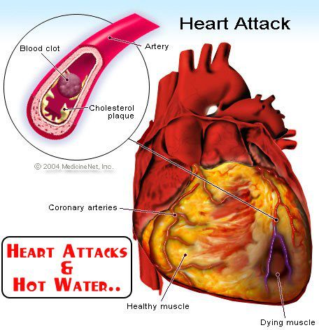 Heart Attack and Hot Water