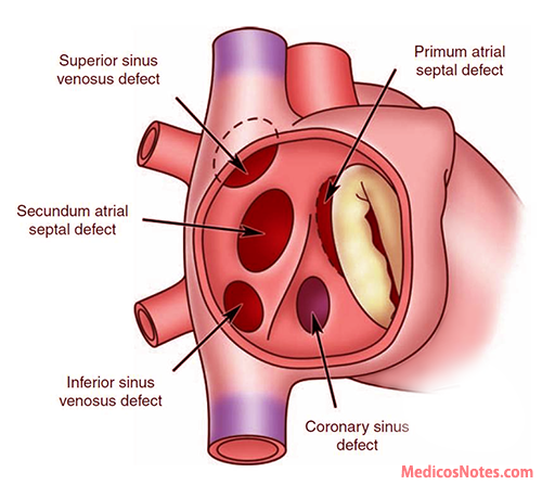 Atrial septum anatomy