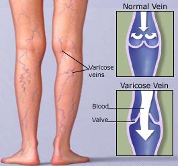 Home Remedies For Sore Leg Veins