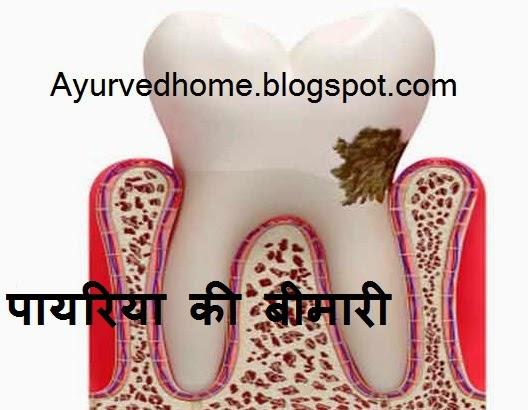 dental treatment पायरिया की बीमारी का उपचार