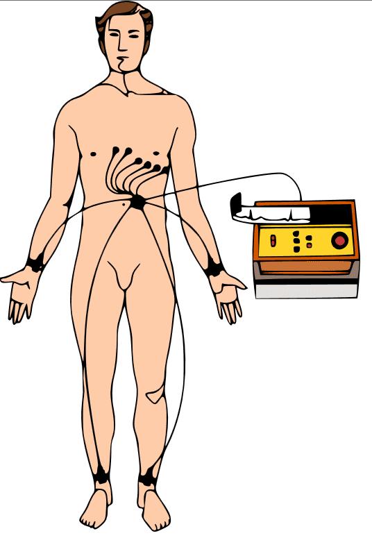 Electrocardiograma: derivaciones de miembros y precordiales