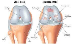 Artrose no Joelho é mais comum em mulheres