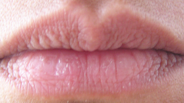 Chapped dyhydrated lips picture