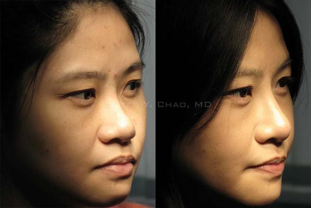 微晶瓷, Radiesse鼻形雕塑 隆鼻