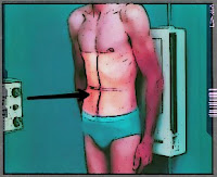 abdomina radiography