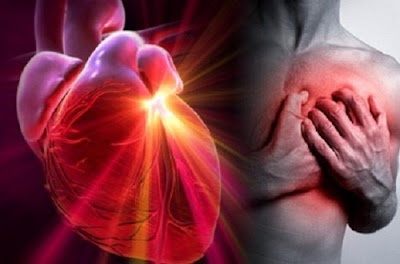 Causas enfermedad cardiovascular